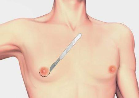 разрез при операции (гинекомастия)