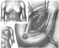 удаление злокачественной опухоли