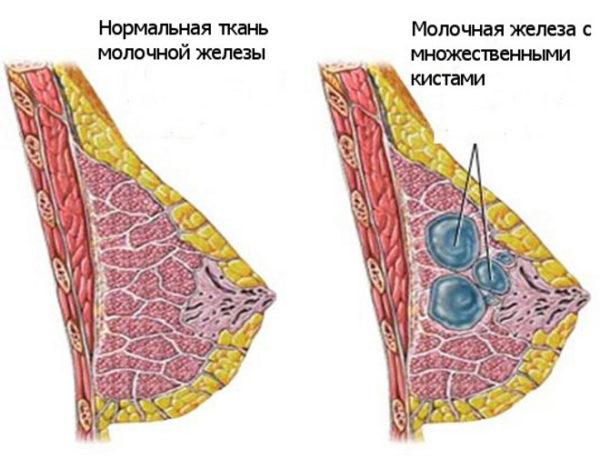 множественные кисты в молочной железе
