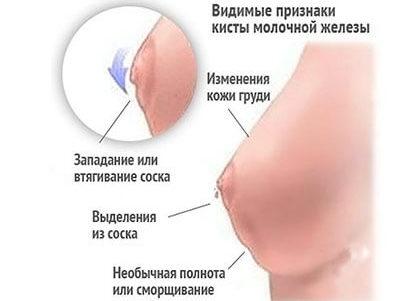 Кисты молочной железы