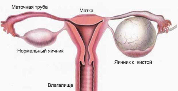 дисфункция яичника