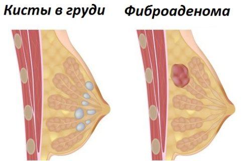 Кисты и фиброаденома