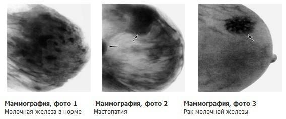 узи маммография
