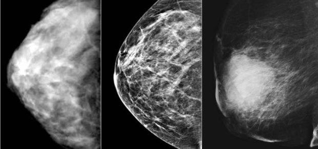 Снимки после маммографии