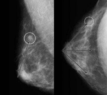 Рентген маммографии