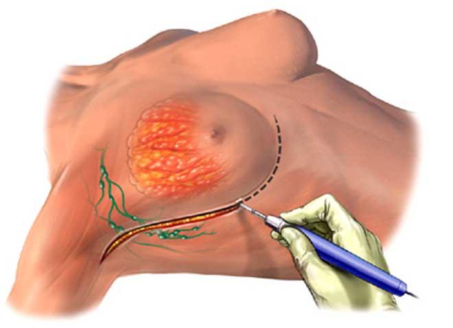 мастэктомия молочной железы