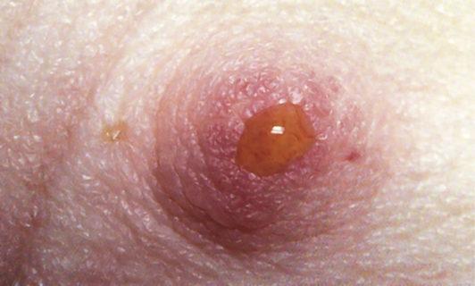 выделения из сосков при кисте молочной железы