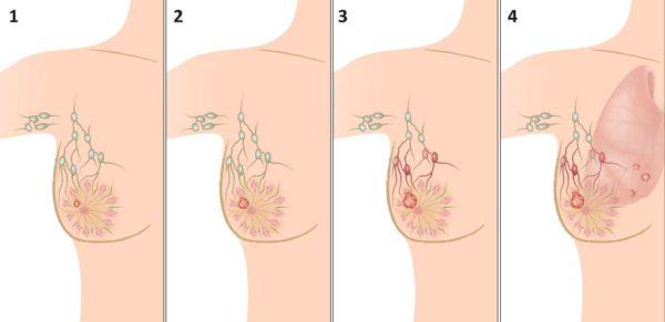 Опухоли в груди