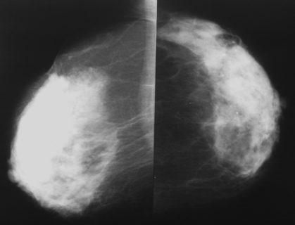 Снимки маммографии