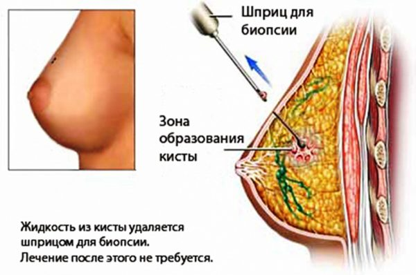 удаление кисты молочной железы