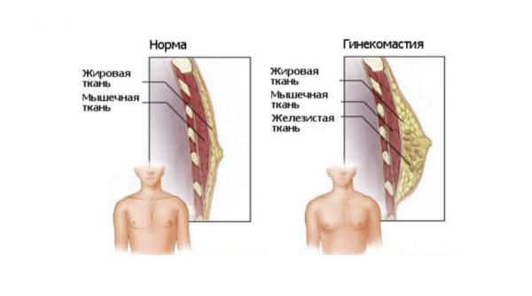 гинекомастия схема