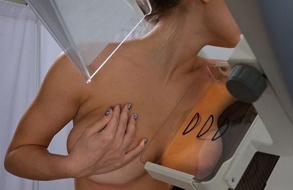 Аналоговая маммография