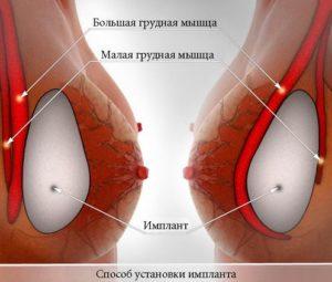 Grudnie endoprotezi2
