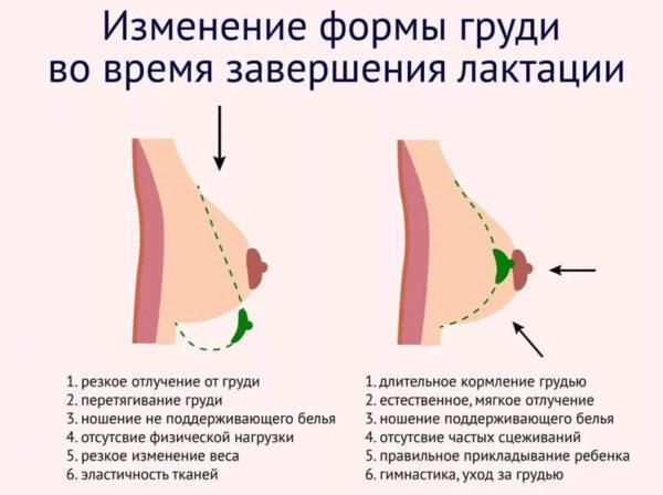 Izmenenie formyi grudi