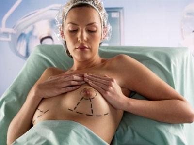 Mammoplastika: do ili posle beremennosti