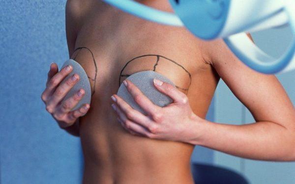 Plasticheskaya operatsiya na grudi