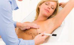 endoskopicheskoe uvelichenie grudi
