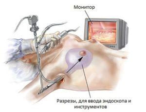 suschnost operacii
